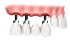 Implants (remplacent plusieurs dents)