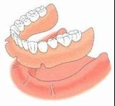 Prothèse dentaire complète (dentier)
